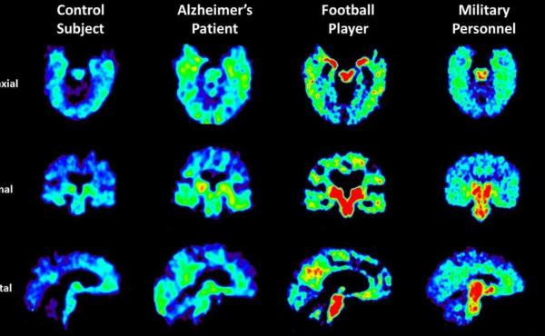 UCLA researchers are using a radioactive tracer, which binds to abnormal proteins in the brain, to see if it is possible to diagnose chronic traumatic encephalopathy in living patients. Warmer colors in these PET scans indicate higher concentrations of th