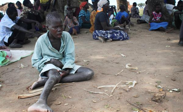 A child with nodding syndrome waits for treatment at an outreach site in Uganda's Pader district.