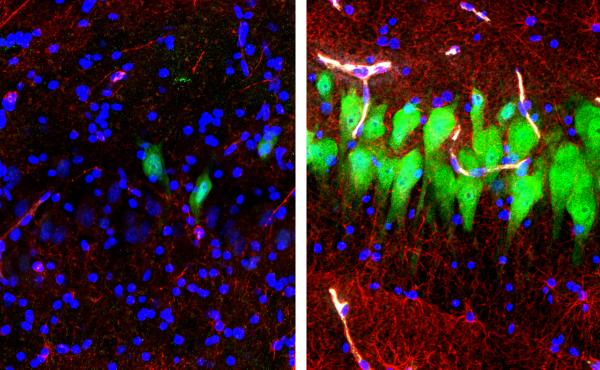 The image on the left shows the brains of pigs that were untreated for 10 hours after death, with neurons appearing as green, astrocytes as red and cell nuclei as blue. The image on the right shows cells in the same area of brains that, four hours after d