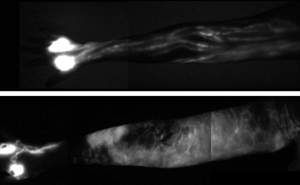 The image of a normal upper arm (top) shows the delicate network of healthy lymph vessels. In the lower image of a patient with lymphedema, a collection of lymph fluid, in white, has made the arm swell.