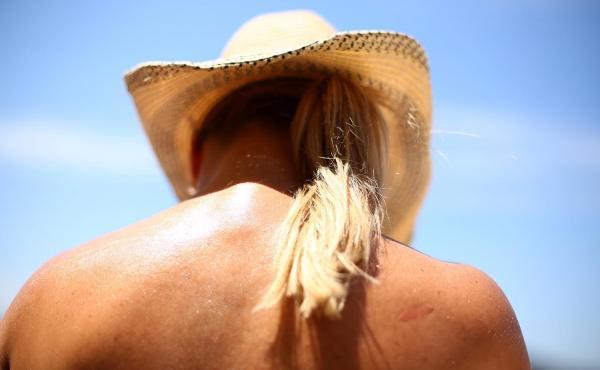 Melanoma survivors may still be taking chances with sun exposure.