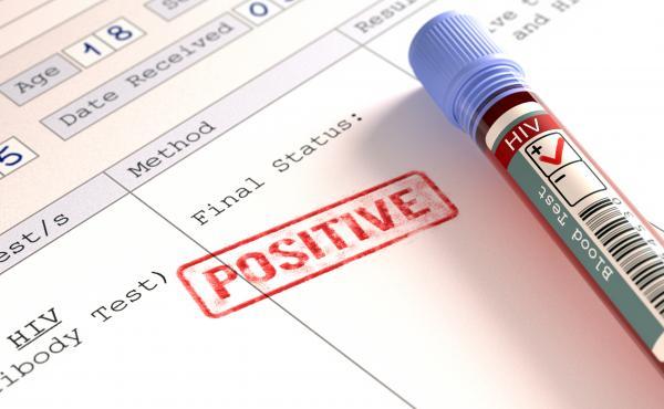 Positive HIV (human immunodeficiency virus) blood test results, computer illustration.