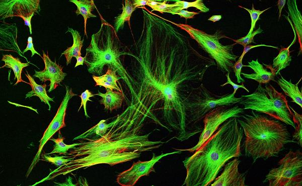 Astrocyte cells like these from the brain of a mouse may differ subtly from those in a human brain.