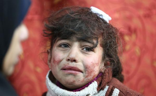 Hala, 9, receives treatment at a makeshift hospital following Syrian government bombardments on rebel-held town of Saqba, in Eastern Ghouta, on Thursday.