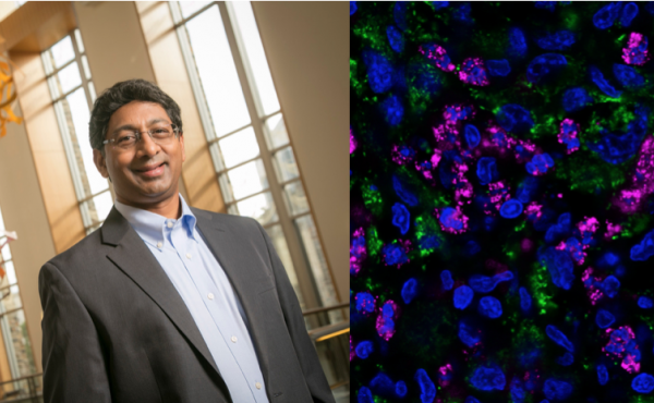 Left: Ravi Bellamkonda, Vinik Dean of the Pratt School of Engineering at Duke University  Right:A fluorescent stained image of a tumor marking bacterial nanocarriers in pink, cancer cell nuclei in blue, and human mitochondria (another indicator of tumor c